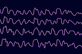 Brain waves during sleep, illustration