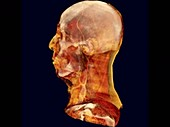 Head and neck, rotating 3D CT angiogram