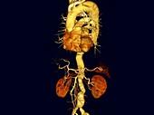 Aortic aneurysms, rotating 3D CT scan