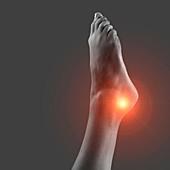 Ankle pain, conceptual image