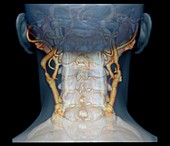 Atherosclerosis in neck arteries, 3D CT scan
