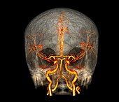 Brain and neck arteries, 3D CT angiogram