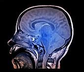 Brain death test, MRI scan