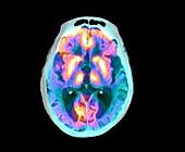 Alzheimer's disease, PET-CT brain scan