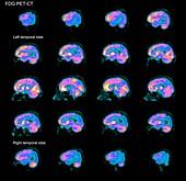 Alzheimer's disease, PET brain scans