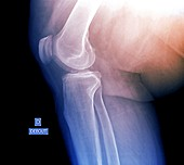 Knee osteoarthritis in obesity, X-ray