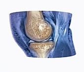 Knee meniscus injury, 3D CT-MRI scan