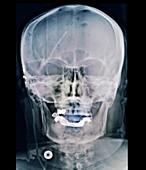 External ventricular drain in neurosurgery, X-ray