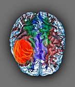 Glioblastoma brain cancer, DTI MRI scan