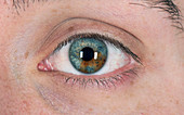 Naevus in the iris of the eye