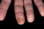 Cold burn on a finger tip