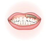Snus use, illustration