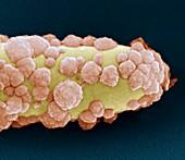 Acidovorax20kx - Bakterien, Acidovorax 120 000:1