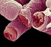 Bac anthr Sporen 60kx - Bakterien, Bacillus anthracis, Sporen 60 000-1