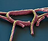Bac anthracis 8kx - Bakterien, Bacillus anthracis, 8 000:1