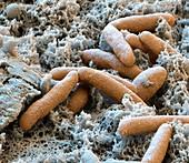 Myxococcus xanthus 30kx - Bakterien, Myxococcus xanthus 30 000:1