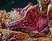 Lungenkrebs Rand 500x - Lungenkrebs Adenokarzinom 500:1