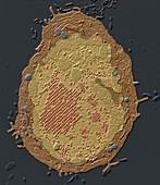 Adenoviren im Zellk1 10kx - Adenoviren in einer Zelle 10 000:1
