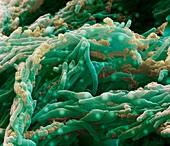 Mycobacterium tuberk 12kx A2 - Mycobacterium tuberculosis 12 000:1