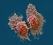Adenokarz Zellteil 3500x - Adenokarzinom-Zellen nach der Teilung, 3500:1