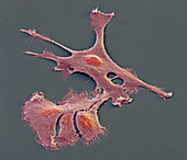 EPN Hirntumor 1700x - Ependymom-Zellen aus Kultur 1700:1