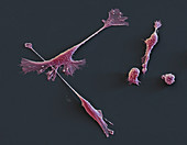 MDA231 Mammakarz 1000x - Brustkrebs-Zellen aus Kultur 1000:1