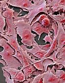 Ovarian cancer cells, SEM