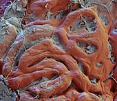 Gastric mucosa, SEM