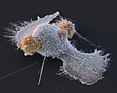 Macrophage and T helper cells, SEM
