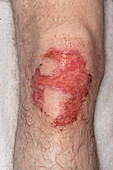 Chemical cement burn on knee