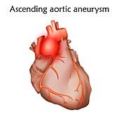 Ascending aortic aneurysm, illustration