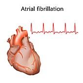Atrial fibrillation, illustration
