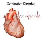 Heart conduction disorders, illustration