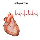 Tachycardia, illustration