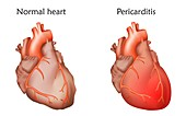 Pericarditis, illustration