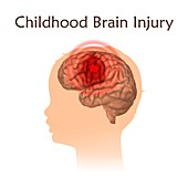 Childhood brain injury, illustration