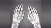 Arthritic hands, X-ray animation