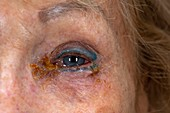 Crusting around infected eye