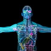 Cancer metastasis, illustration