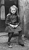 Child with tuberculosis, France, 1918