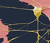 Stem cell-derived motor neuron, SEM