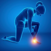 Woman with foot pain, illustration