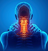 Man with neck pain, illustration