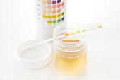 Urine sample for analysis and test strip