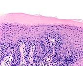 Soft palate papilloma, light micrograph