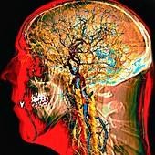 BrainTree artwork, digital composite