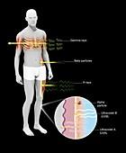 Radiation effects on humans, illustration