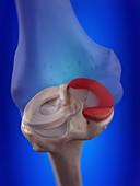 Illustration of the medial meniscus