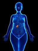 Illustration of an obese woman's gallbladder