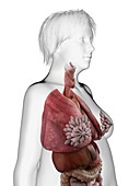 Illustration of an obese woman's internal organs